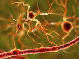 Gut microbes could influence neurodegenerative disease progression